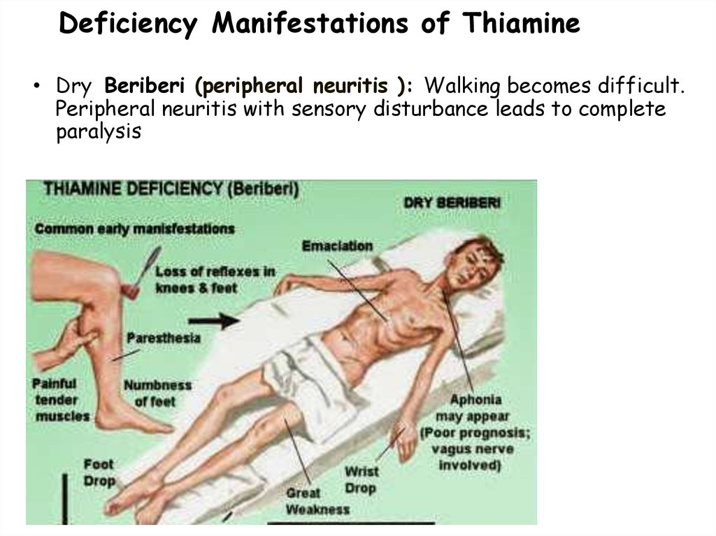Deficiency Manifestations of Thiamine
