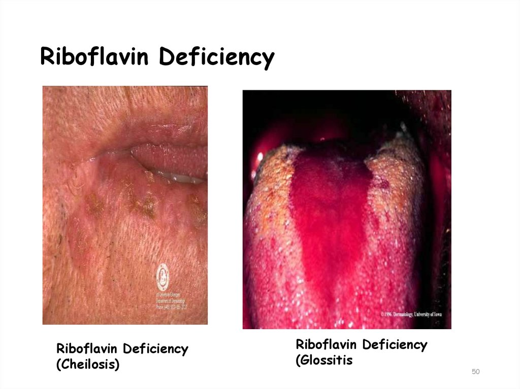 Riboflavin Deficiency