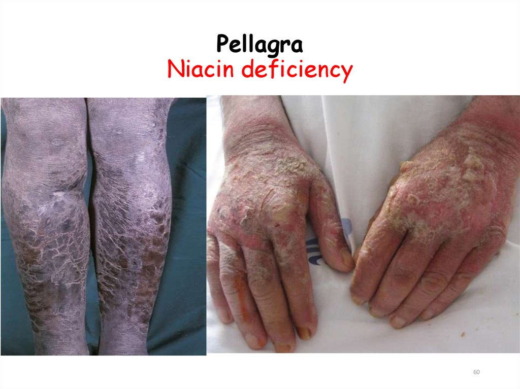Pellagra Niacin deficiency
