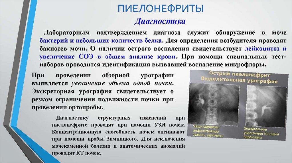Диета при диагноз хронический пиелонефрит