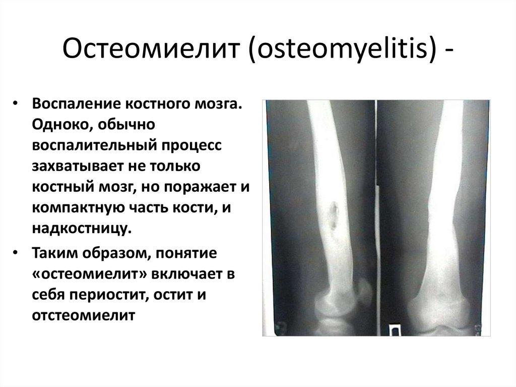 Простатит и остеомиелит болеют ли голубые простатитом