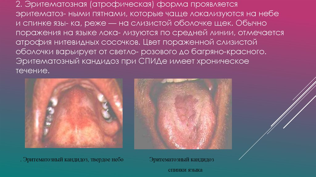 вич инфекция 2 стадия