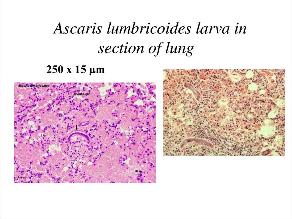 ascaris bronchitis pinworms kezelés felnőtteknél gyógyszerek