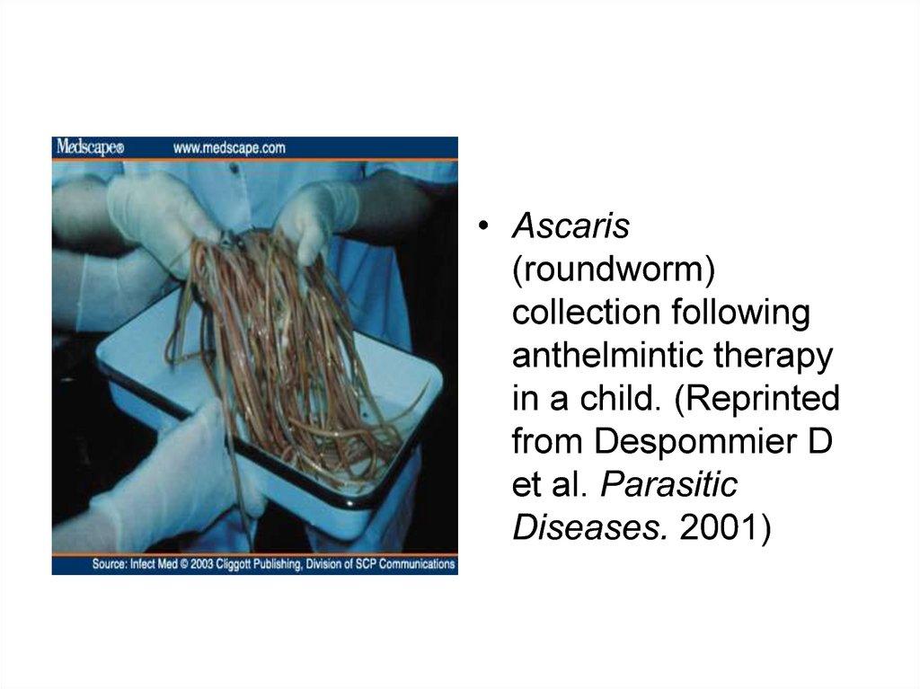 Ascaris felnőttek tünetei és kezelési áttekintése