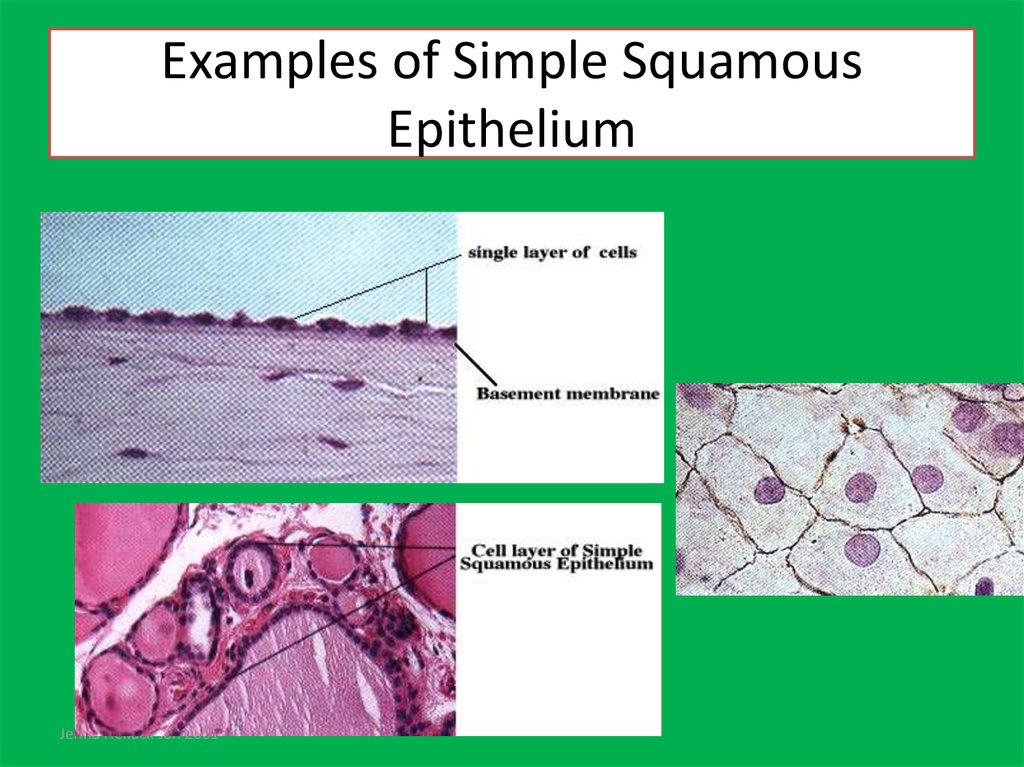 Examples of Simple Squamous Epithelium