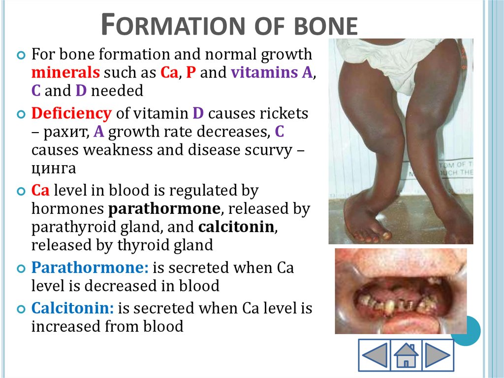Formation of bone