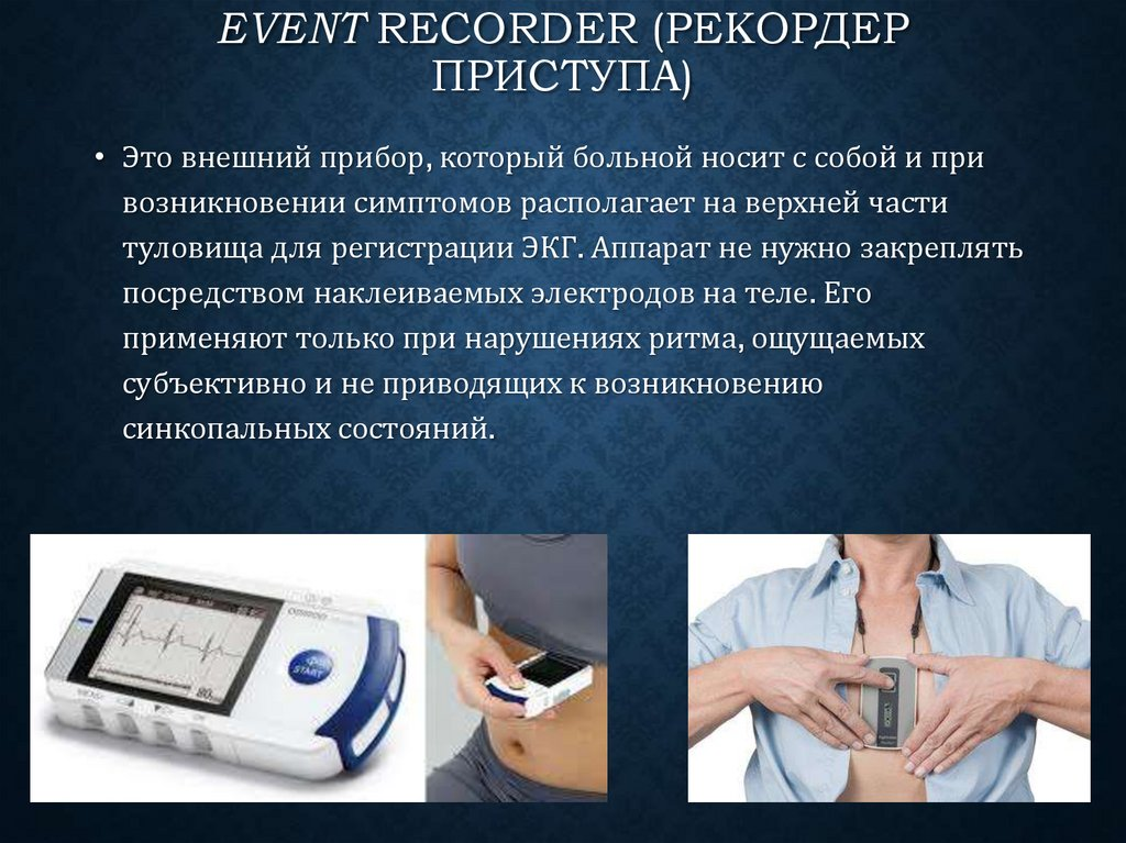 Event Recorder (рекордер приступа)