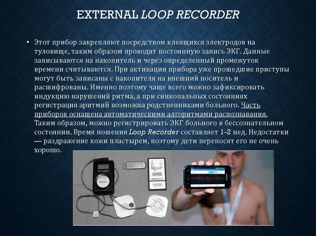 external Loop Recorder