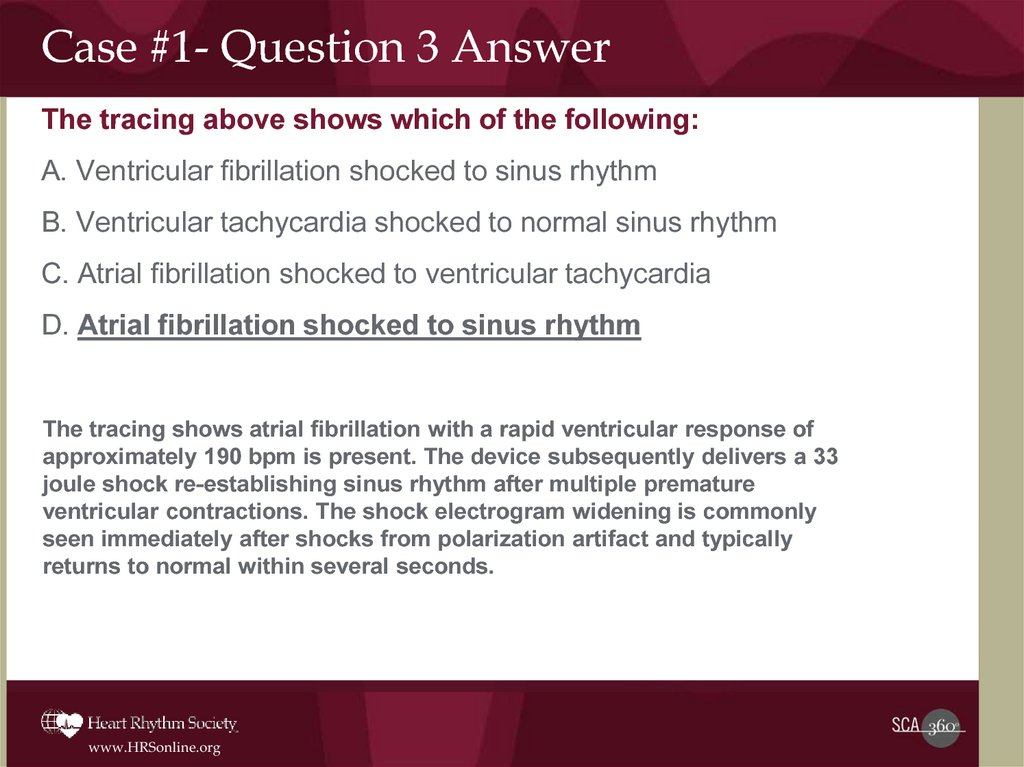 Case #1- Question 3 Answer