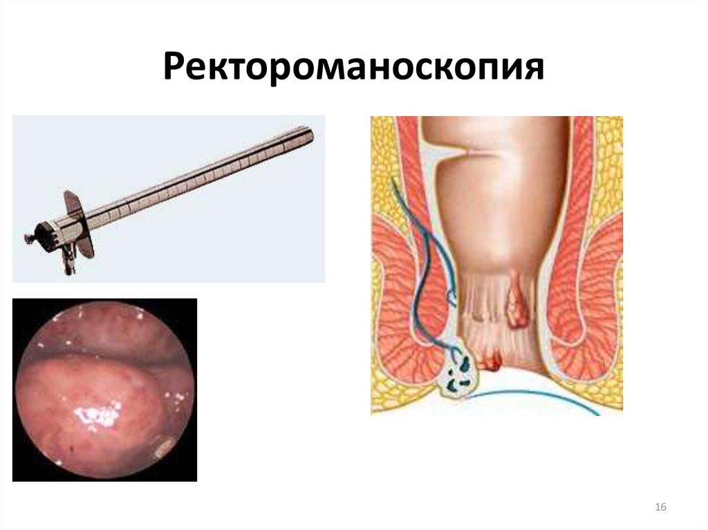 Ректороманоскопию в картинках