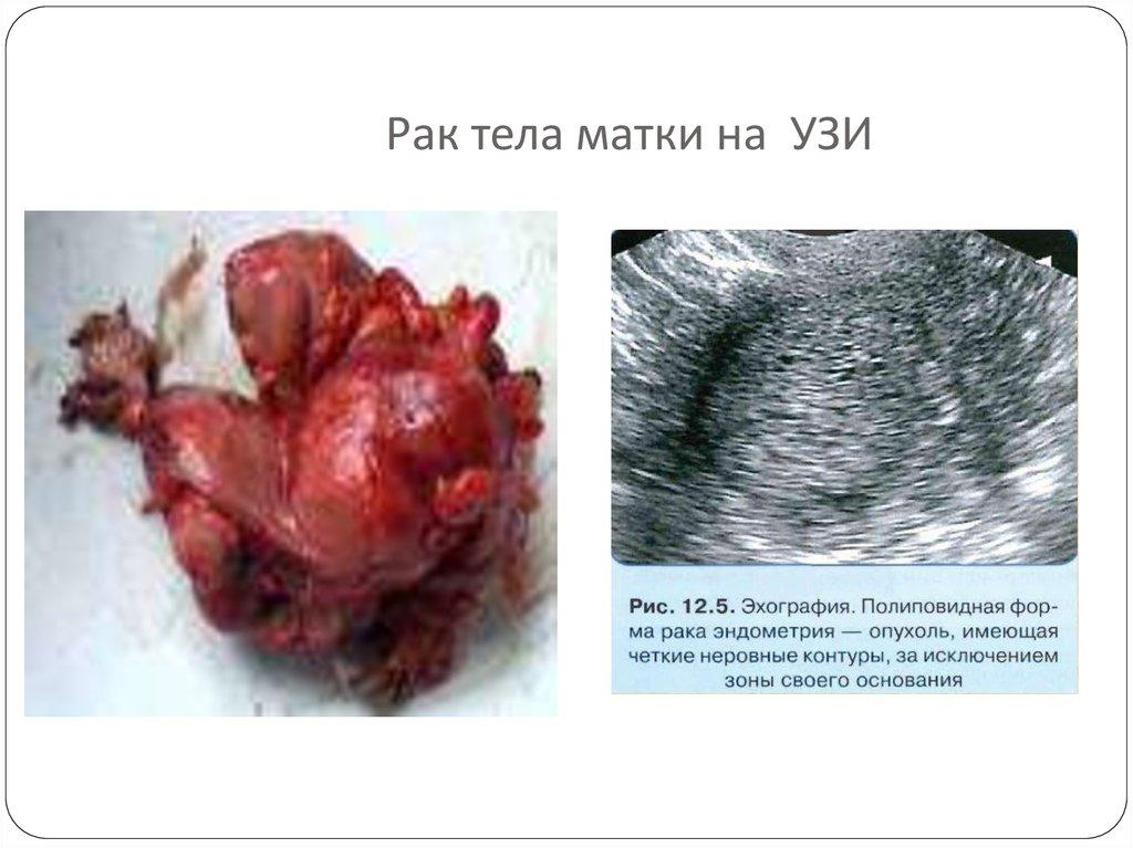 мясо, картинки рака эндометрия профессия хоть