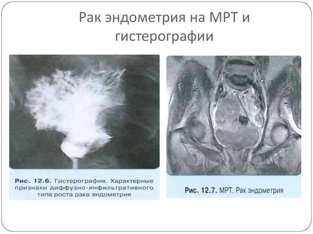 картинки рака эндометрия границу