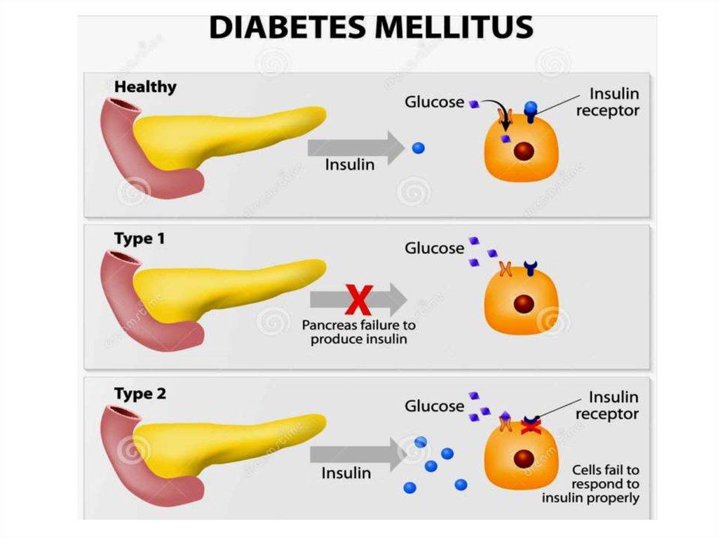 Kohlenhydratstoffwechsel bei Diabetes - DocCheck