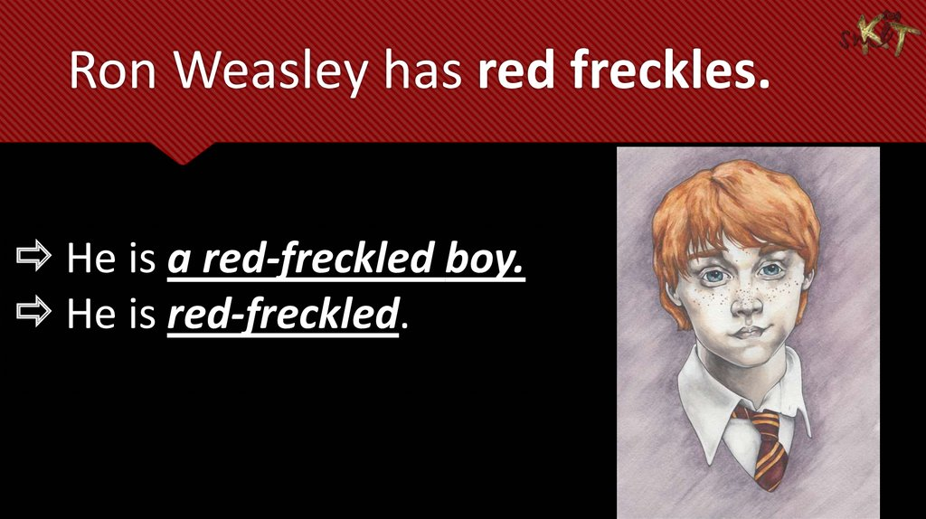 Ron Weasley has red freckles.