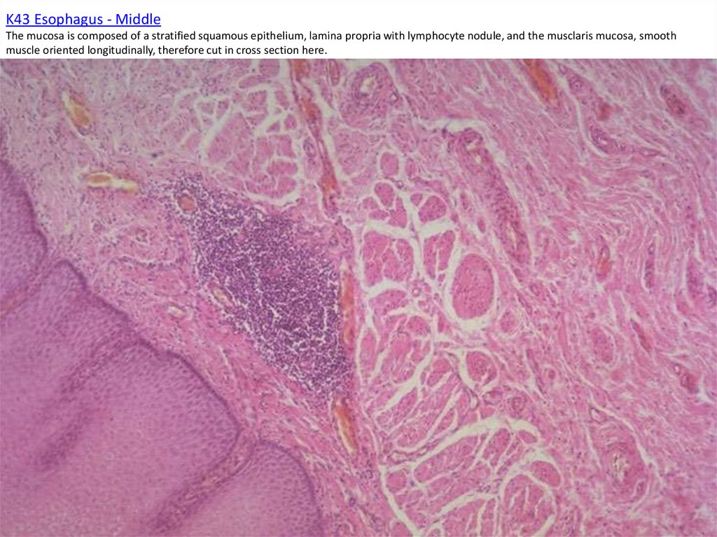 K43 Esophagus - Middle The mucosa is composed of a stratified squamous epithelium, lamina propria with lymphocyte nodule, and