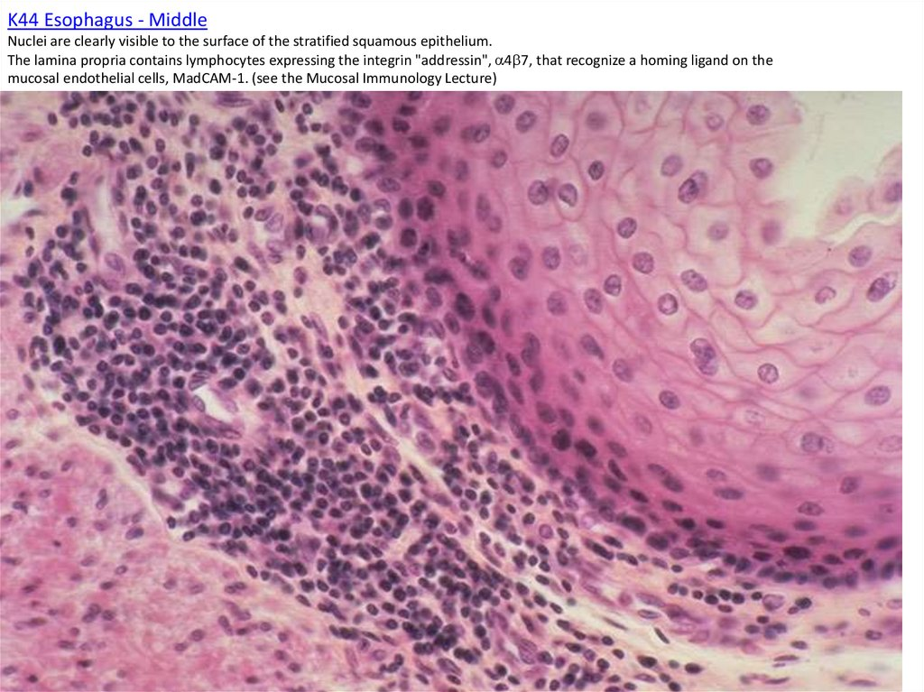 K44 Esophagus - Middle Nuclei are clearly visible to the surface of the stratified squamous epithelium. The lamina propria