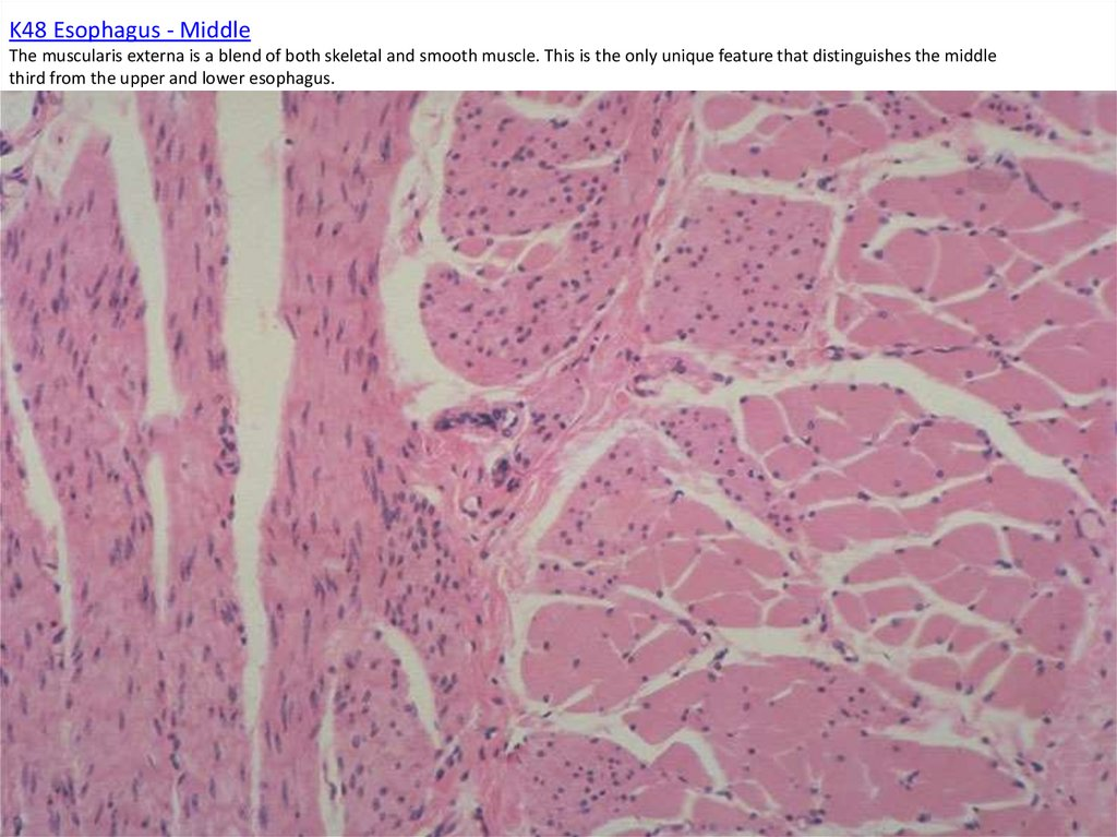 K48 Esophagus - Middle The muscularis externa is a blend of both skeletal and smooth muscle. This is the only unique feature