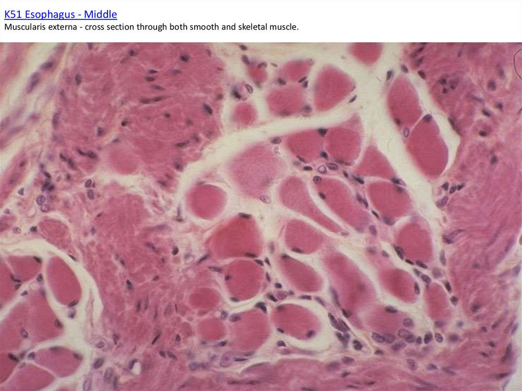 K51 Esophagus - Middle Muscularis externa - cross section through both smooth and skeletal muscle.