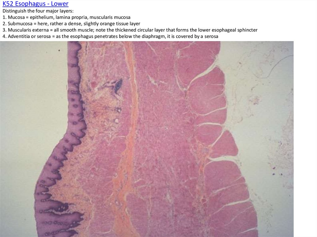 K52 Esophagus - Lower Distinguish the four major layers: 1. Mucosa = epithelium, lamina propria, muscularis mucosa 2. Submucosa
