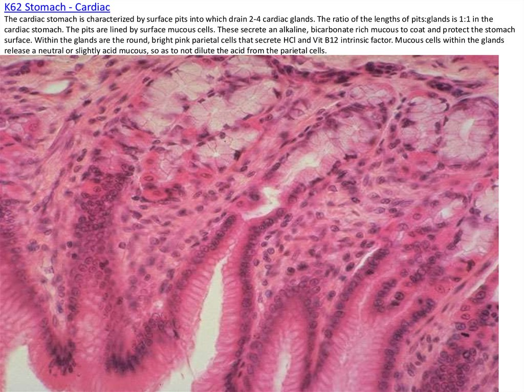 K62 Stomach - Cardiac The cardiac stomach is characterized by surface pits into which drain 2-4 cardiac glands. The ratio of