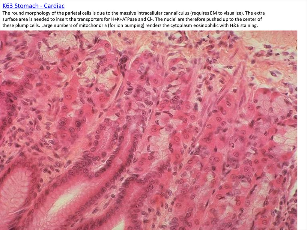 K63 Stomach - Cardiac The round morphology of the parietal cells is due to the massive intracellular cannaliculus (requires EM