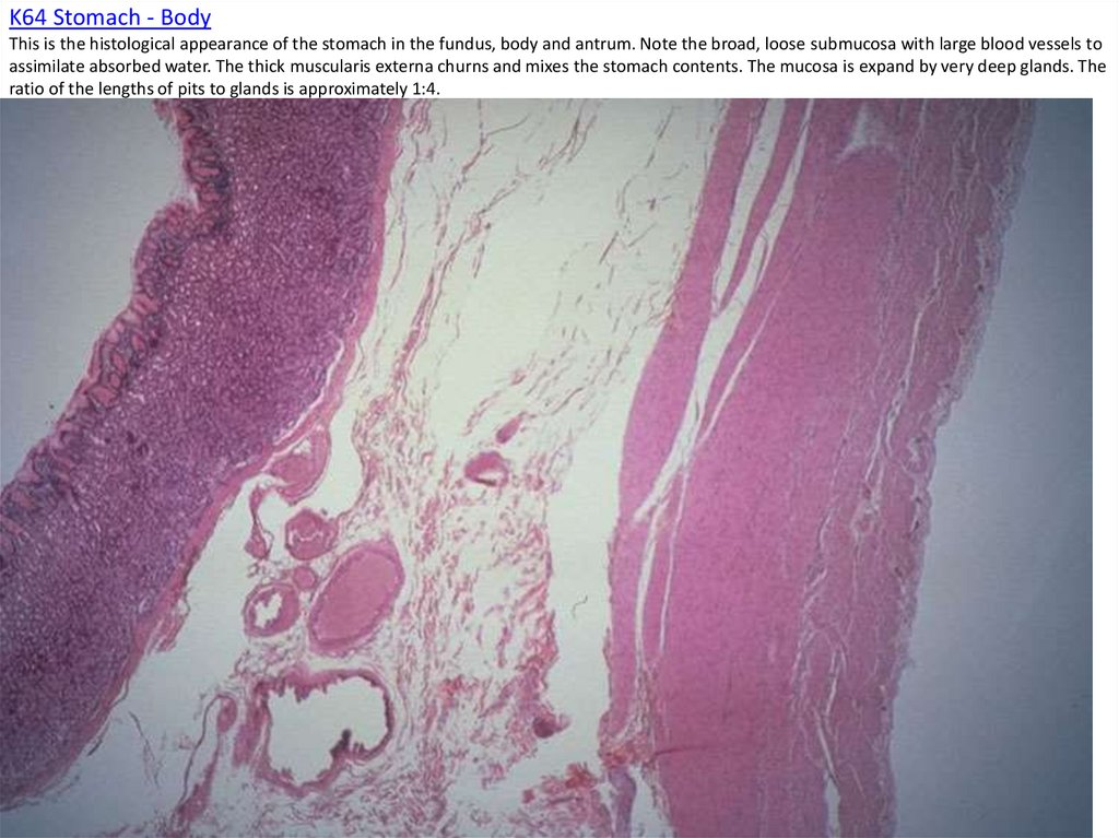 K64 Stomach - Body This is the histological appearance of the stomach in the fundus, body and antrum. Note the broad, loose