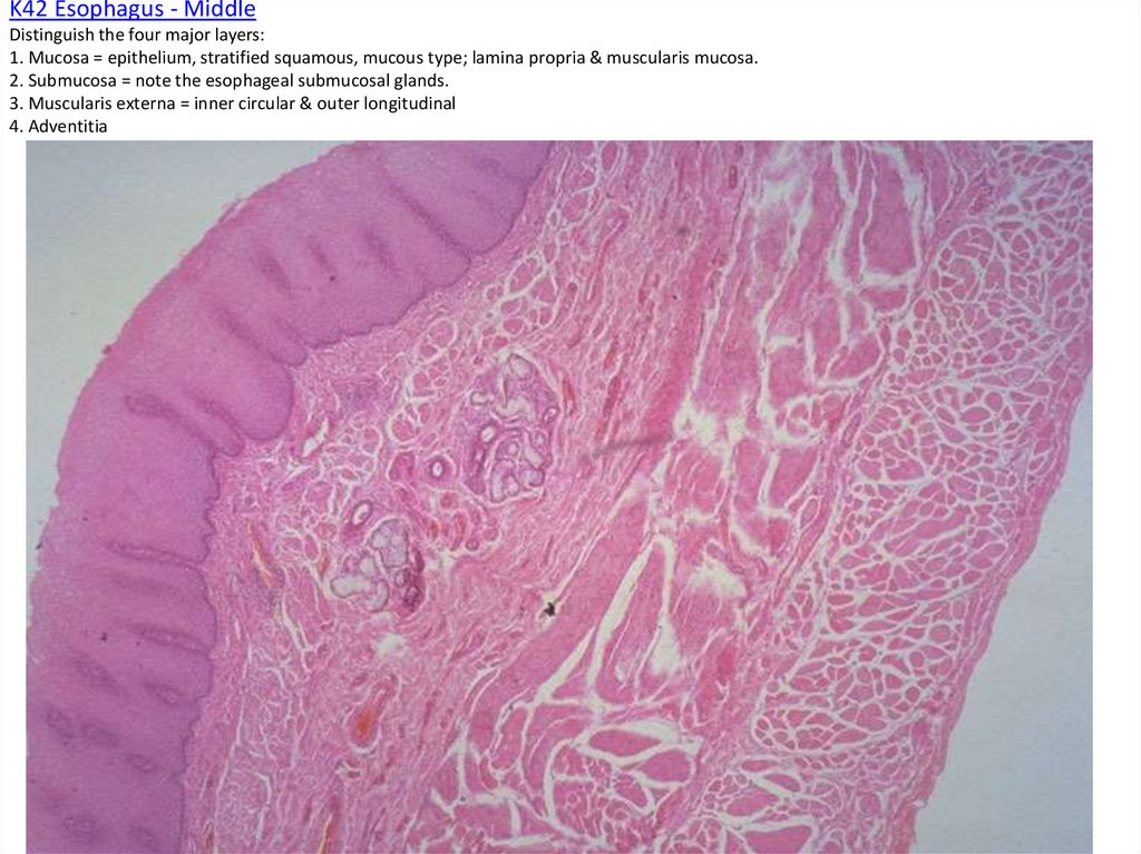 K42 Esophagus - Middle Distinguish the four major layers: 1. Mucosa = epithelium, stratified squamous, mucous type; lamina