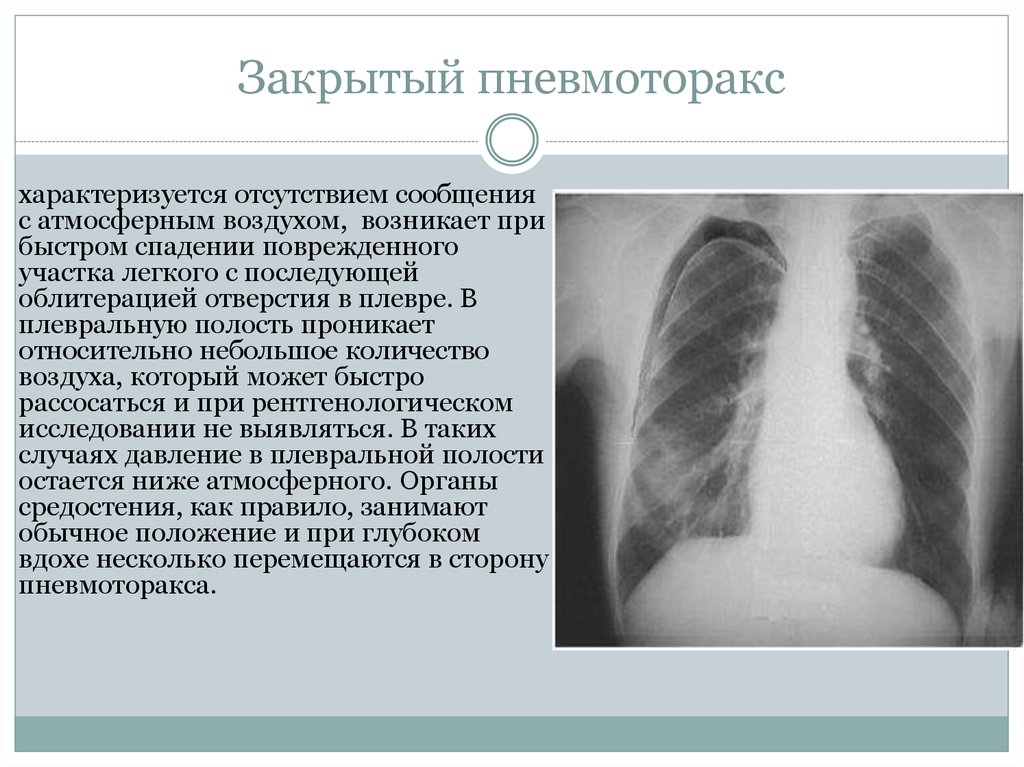 pneumothorax essay Treatment list for pneumothorax the list of treatments mentioned in various sources for pneumothorax includes the following list always seek professional medical advice about any treatment or change in treatment plans.
