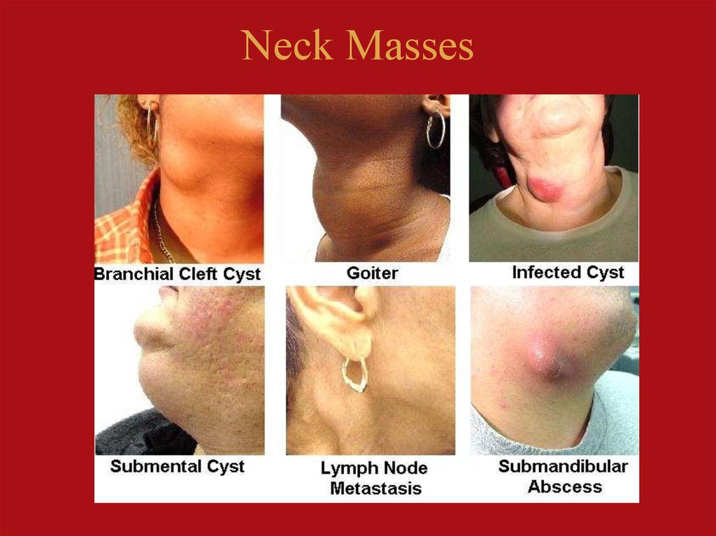 Neck Masses