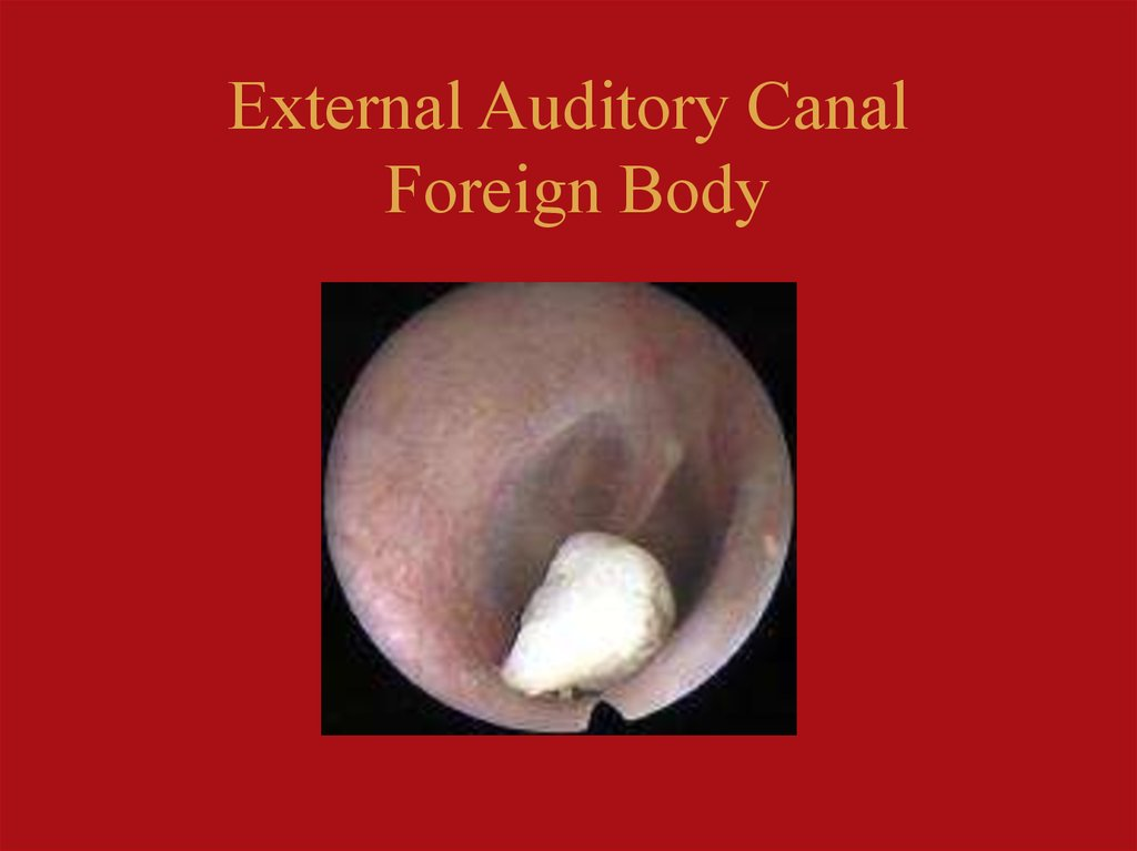 External Auditory Canal Foreign Body