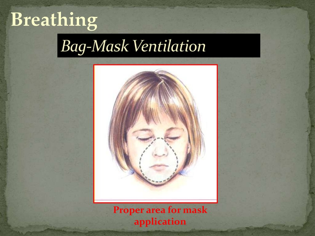 Bag-Mask Ventilation