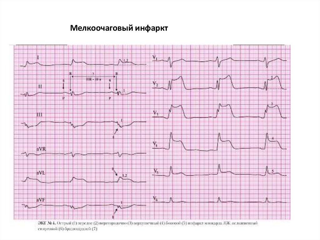 Мелкоочаговая инфаркт миокарда картинки