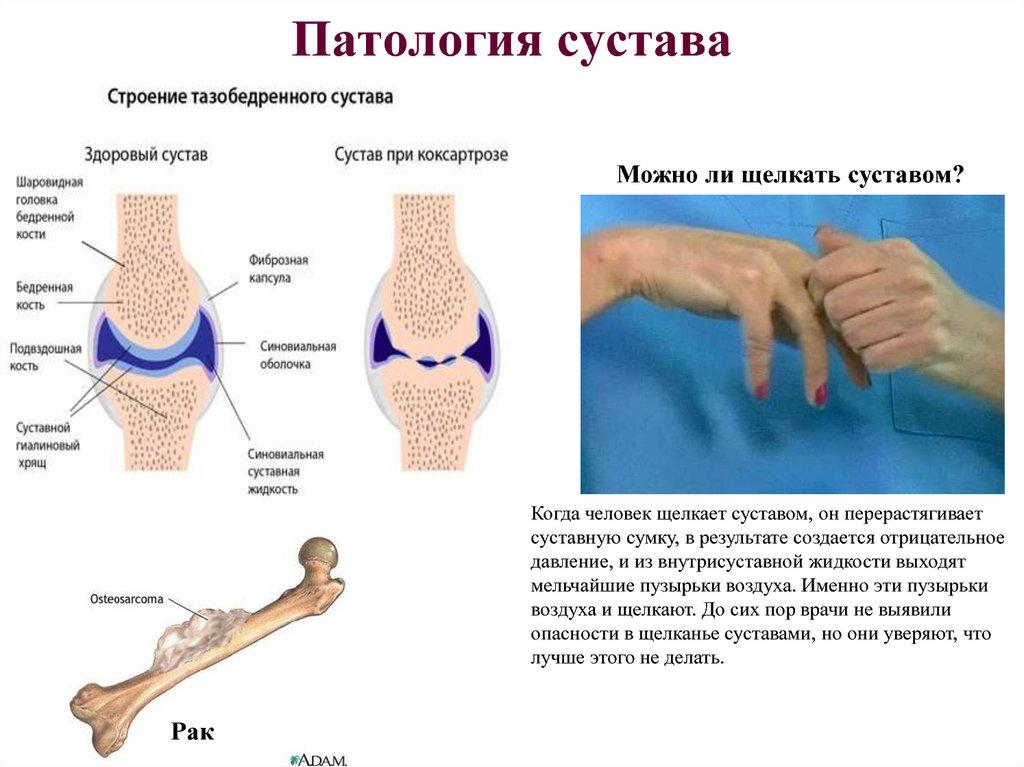 Внутри суставной сумки давление меньше чем в лечение связок сустава