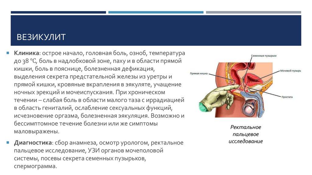 везикулит и простатита