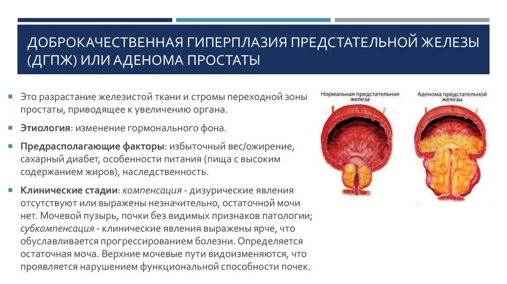 Дифузный хронический простатит сколько проходит лечение хронического простатита
