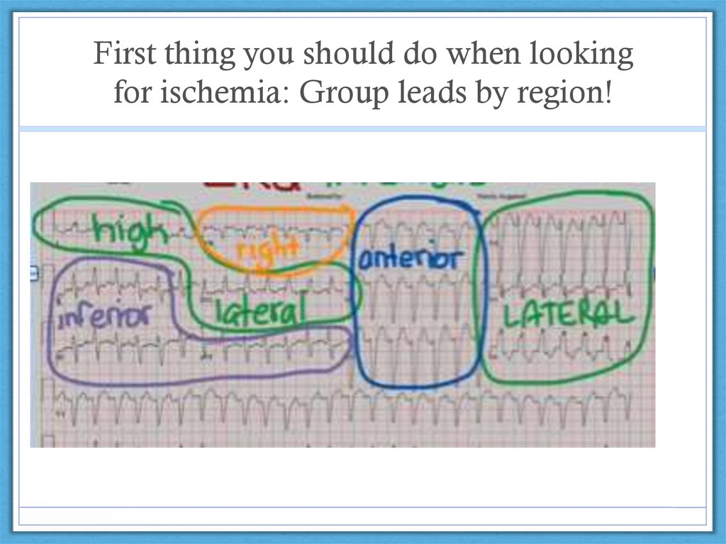 First thing you should do when looking for ischemia: Group leads by region!