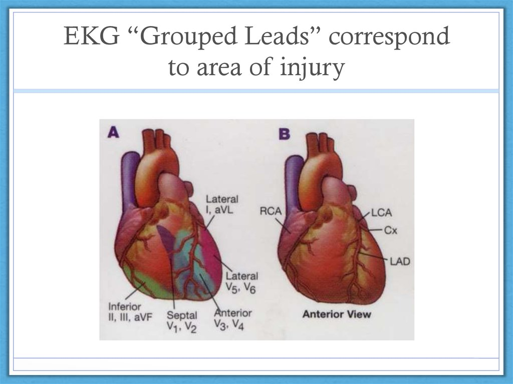 "EKG ""Grouped Leads"" correspond to area of injury"