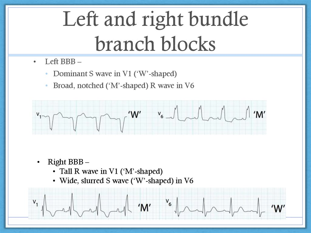 Left and right bundle branch blocks
