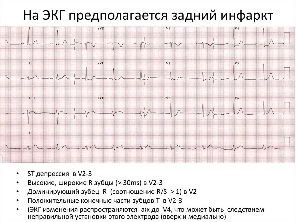 все фото кардиограммы с инфарктом челябенске анализ