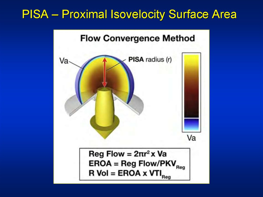 PISA – Proximal Isovelocity Surface Area