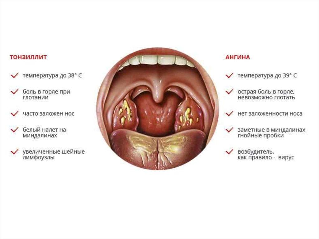 Болит ли горло при простатите от простатита рыбий жир