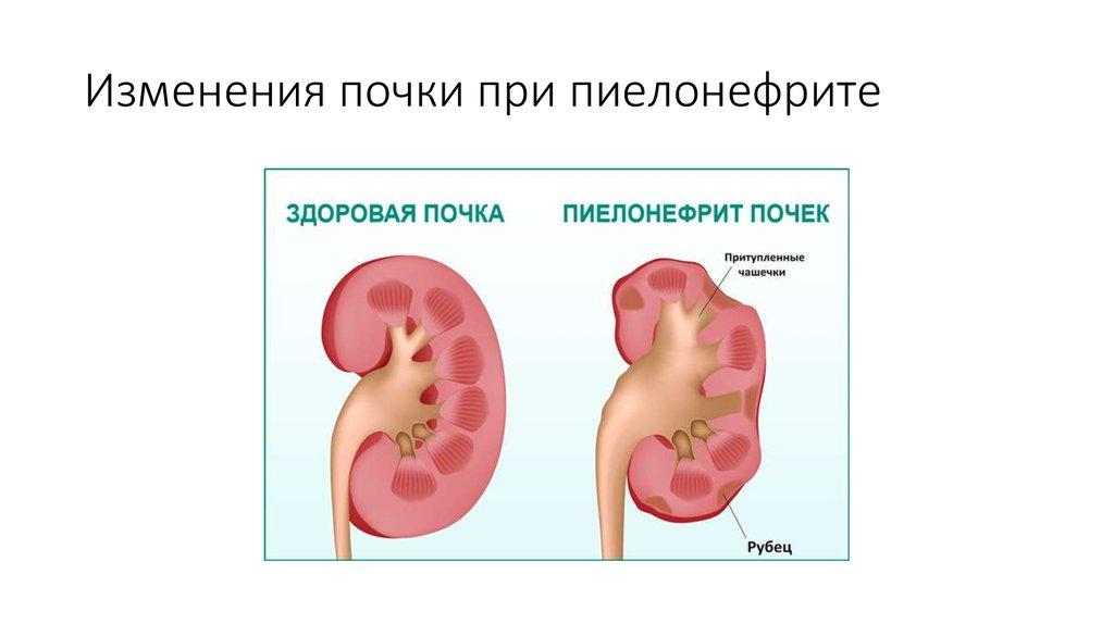 Пиелонефрит может стать причиной простатита лечение простатит голодом