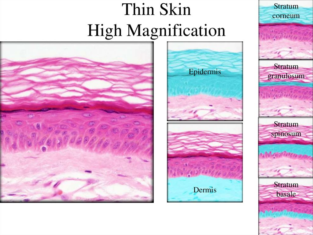 Thin Skin High Magnification