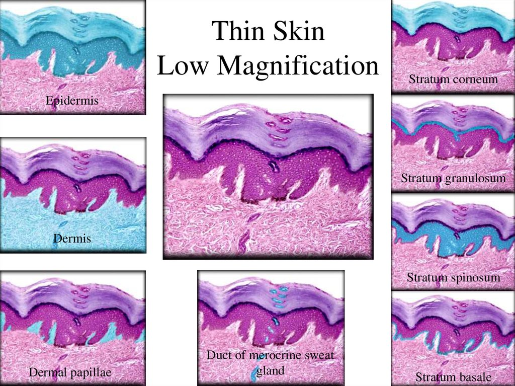 Thin Skin Low Magnification