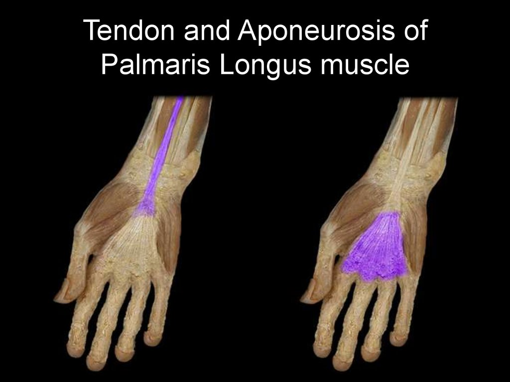 Tendon and Aponeurosis of Palmaris Longus muscle