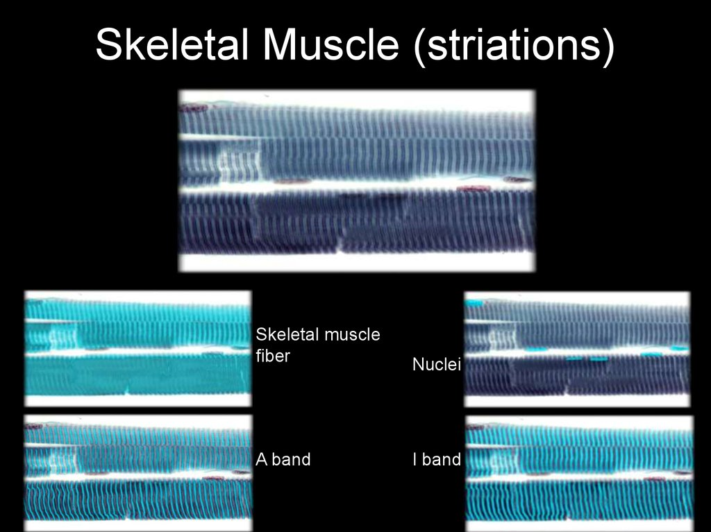Skeletal Muscle (striations)