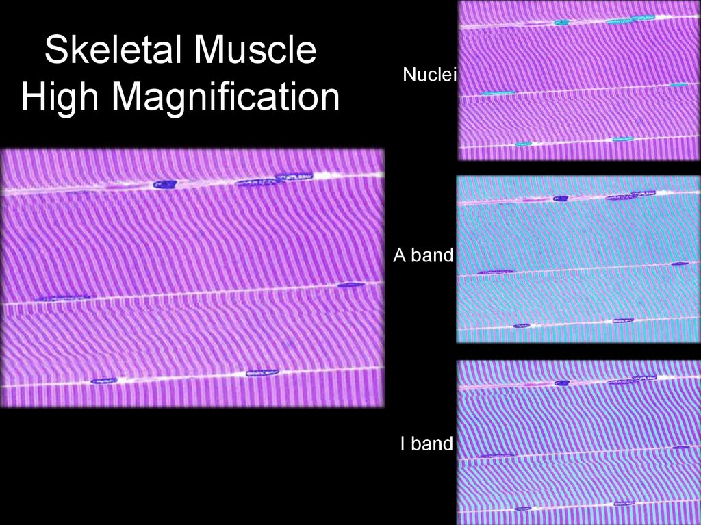 Skeletal Muscle High Magnification