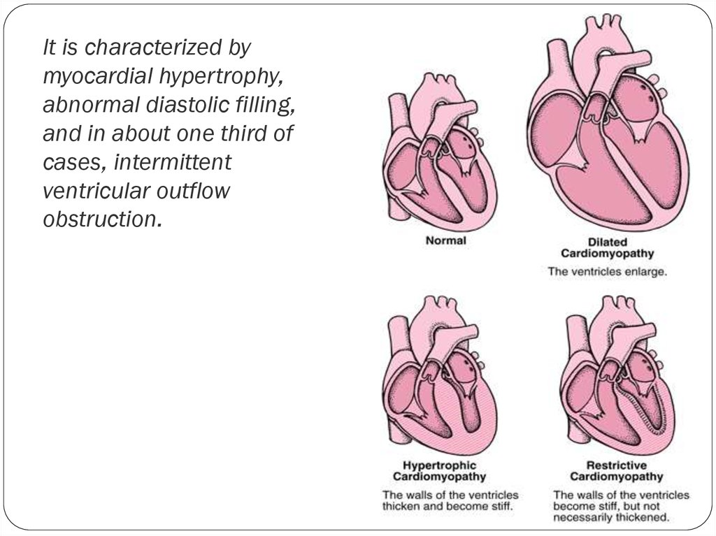 It is characterized by myocardial hypertrophy, abnormal diastolic filling, and in about one third of cases, intermittent