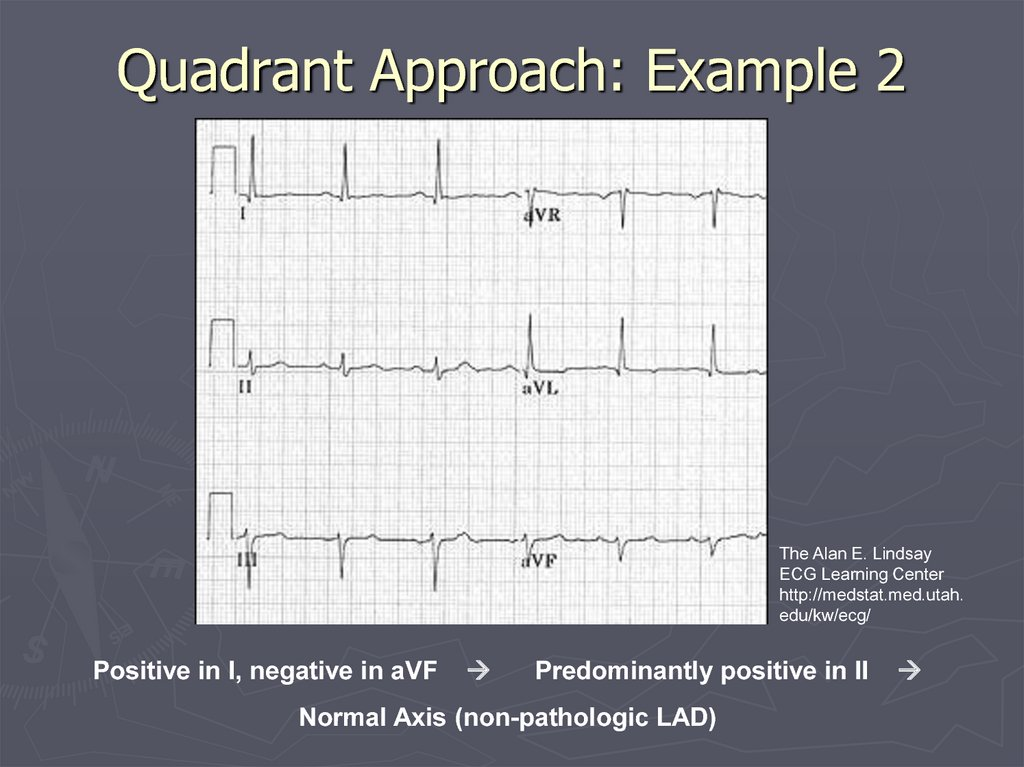 Quadrant Approach: Example 2