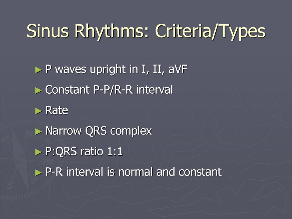 Sinus Rhythms: Criteria/Types